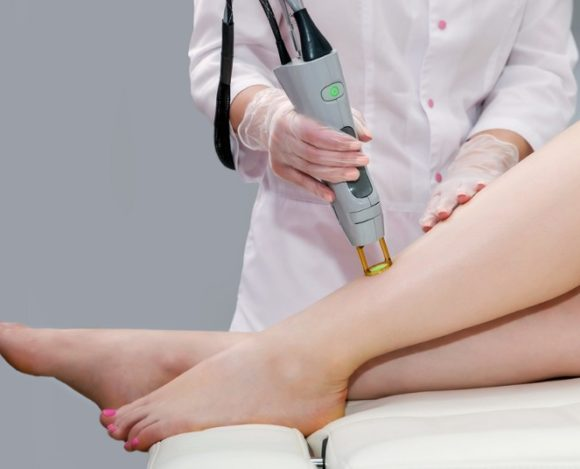 We Answer Every Question You've Ever Had About Laser Hair Removal