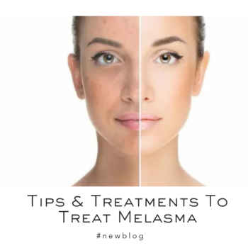 Tips And Treatments For Melasma | Dr. Geetika helps you treat pigmentation I Post Pregnancy Special