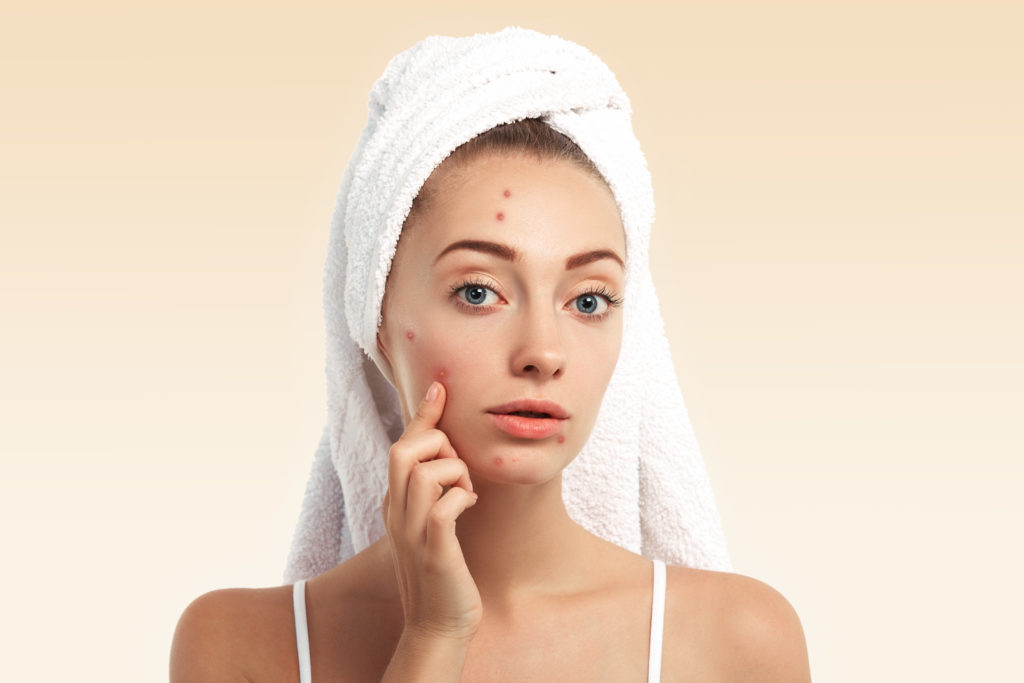 What are the different types of skin pigmentation